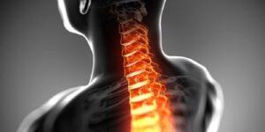 صدمات جدی سر و گردن بیشتر در ورزشکاران شرکت کننده در ورزش های پر برخورد یا ورزشهایی که با خطر سقوط از ارتفاع همراه است دیده می شود، شکستگی مهره های گردنی می تواند به صورت مستقیم باعث آسیب به نخاع در ریشه های عصبی شده که مراقبت های اولیه و فوری عامل پیشگیری از بروز عوارض می باشند. همچنین می تواند بدون ایجاد شکستگی استخوانی منجربه کوفتگی نخاع وآسیب ریشه های عصبی اطراف آن شود. در برخورد اولیه با ورزشکار مصدوم بررسی وشناسایی صدمات سر و گردن از نکات بسیار حساس و مهم است که کادر درمانی باید توجه داشته باشند. در صورت مراجعه با مصدوم گردنی باید ستون مهره های گردنی با حفظ بی حرکتی کردن توسط گردن بند طبی سقف حمایت شود و هیچ گونه حرکتی در گردن ورزشکار ایجاد نشود. ورزشکار مبتلا به یک آسیب ستون مهره های گردنی ممکن است از درد گردن یا علائم عصبی مثل درد تیر کشنده، کرختی، سوزن سوزن شدن، ضعف یا نهایتاً فلج اندام شکایت کند. کادر درمانی هیات پزشکی جهت انجام بررسی های بعدی مصدوم را روی یک تخته ویژه خوابانده وبا رعایت حداقل حرکات به مرکز درمانی مجهز اعزام نماید. ورزشکار قبل از بازگشت دوباره به ورزش باید دامنه حرکتی کامل وعاری از درد و قدرت کافی را جهت پیشگیری از آسیب مجدد داشته باشد و مهره های گردنی از وضعیت تثبیت شده ای برخوردار باشند.