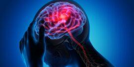 برای تعریف brain stroke به طور خلاصه باید گفت سکته مغزی هنگامی رخ می دهد که یک لخته خونی باعث انسداد شریان خون رسان به مغز می شود. سکته مغزی ( ایسکمیک) و یا یک رگ خونی مغز پاره شده و خونرسانی به بخشی از مغز متوقف می شود و در عرض چند دقیقه پس از این حادثه سلول های مغز شروع به مردن می کنند. سکته مغزی در کل دنیا دومین علت مرگ بشر است و اولین علت از کارافتادگی، اما در کشورهای پیشرفته در حال حاضر سومین علت مرگ است که با پیر شدن جوامع در آینده نه چندان دور در آن کشورها نیز دومین علت مرگ خواهد شد. سکته مغزی یعنی بسته شدن یا پاره شدن یک شریان مغزی که به دنبال آن اختلال در گردش خون آن ناحیه از مغز ایجاد شده و موجب بروز علائمی مثل فلج نیمه بدن، اختلال تکلم و اختلال در راه رفتن می شود.سکته مغزی، زمانی اتفاق می افتد که رگی خونی در مغز مسدود یا منفجر شود. به طور متوسط ۱۰ تا ۱۵ درصد افرادی که به سکته های مغزی مبتلا می شوند در اثر این بیماری جان خود را از دست می دهند و ۶۰ تا ۷۰ درصد بیماران با درمان مناسب می توانند زندگی مستقل داشته باشند. علت بروز سکته مغزی چیست یکی از علل متداول سکته مغزی ضخیم و سخت شدن دیواره رگ های خونی است. پلاکت های ساخته شده از چربی، کلسیم، کلسترول و ... انعطاف رگ های خونی را از میان می برند. لخته خون ممکن است سبب مسدود شدن رگ خونی غیر قابل انعطاف و بروز سکته مغزی ایسکمیک شود. عامل اصلی سکته مغزی هموراژیک در اکثر موارد عدم درمان فشار خون بالا است که سبب انفجار رگ خونی ضعیف می شود. معمولاً این افراد علایم خبرکننده ای مانند سردرد و تشنج دارند که منجر به پاره شدن رگ های مغزی می شود.